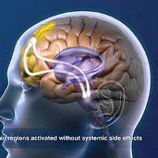 deep brain image